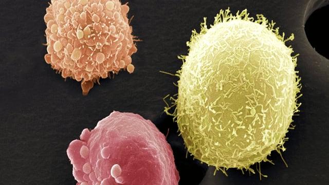 Eine schematische Darstellung von Krebszellen.