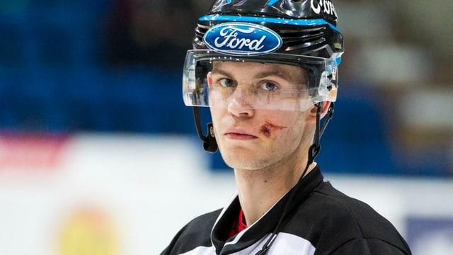 Linesman Sandro Gurtner mit einer Gesichtsverletzung