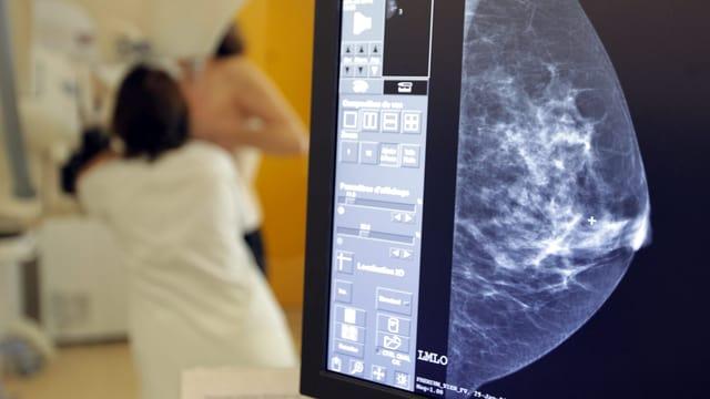 Eine Mammographieaufnahme, im Hintergrund eine Ärztin und Patientin bei der Mammographie.