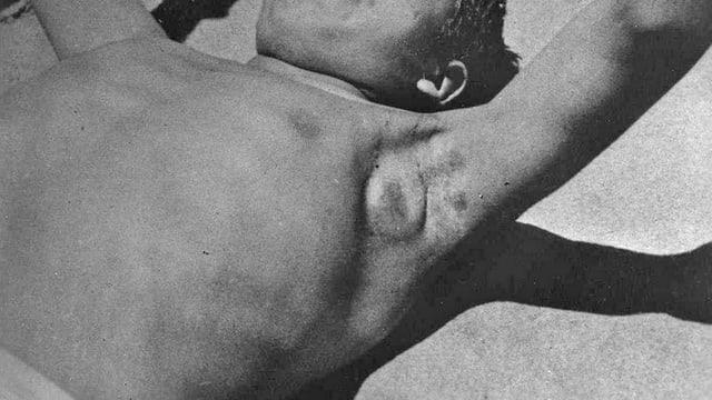 Schwarzweiss-Foto eines Patienten mit einer Pestbeuel in der Achselhöhle