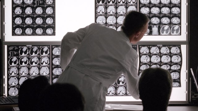 Arzt im weissen Kittel vor einer Leuchtwand mit Röntgenbildern