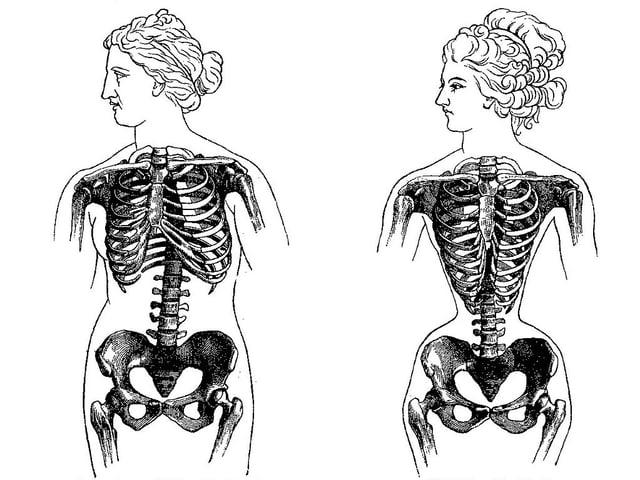 Zwei Skellete, Eines davon ist zusammengeschnürrt und zeigt die Auswirkung des Korsetts. der Brustkorb wird gequetscht.
