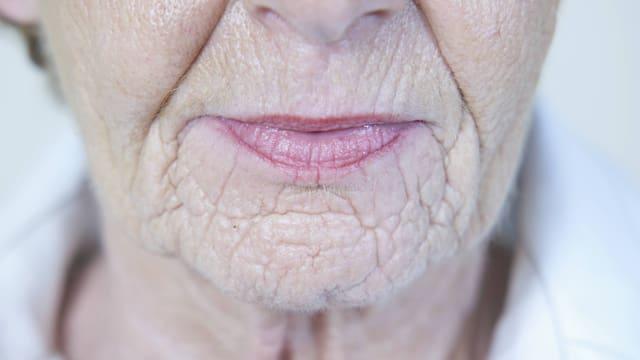 Mund- und Kinnpartie einer älteren Frau.