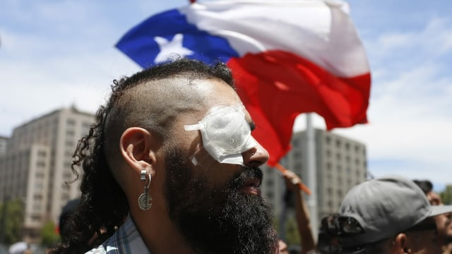 Mann mit Verband über dem rechten Auge.