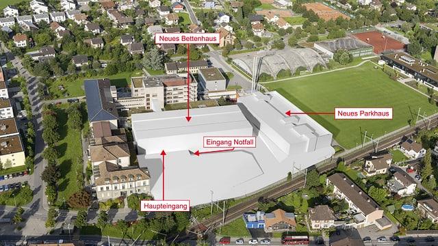 Die Um- und Ausbau-Pläne beim Spital Burgdor