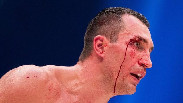 Wladimir Klitscko blutüberströmt im Boxring.