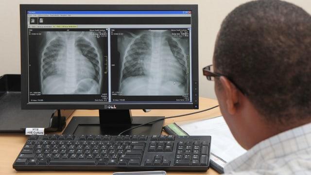 Ein Mann schaut auf einen Bildschirm, auf dem ein Röntgenbild einer Lunge zu sehen ist.