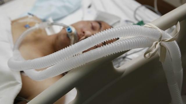 Ein Mann mit Beatmungsschlauch im Mund liegt im Spitalbett.