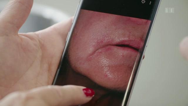 Hautprobleme vermeiden
