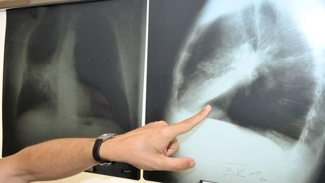 det che mussa sin in purtret da röntgen