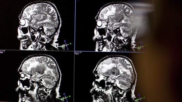 Die Forschungsgruppe will das Gehirn am Computer simulieren.