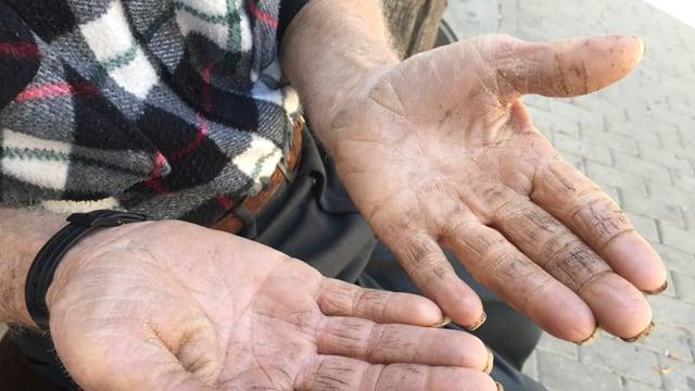 Man sieht die zerfurchten und dreckigen Hände eines 83 Jahre alten Mannes.