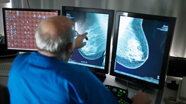 Radiolog en l'ospital a Berna vi da mirar sch'ina dunna ha cancer dal sain.