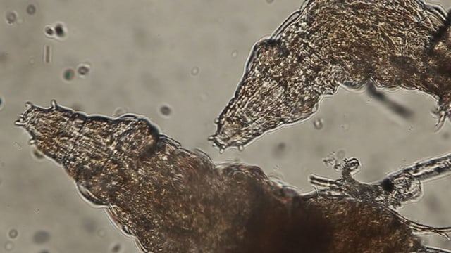 So sieht es aus, wenn man die Tierchen unter dem Mikroskop betrachtet.