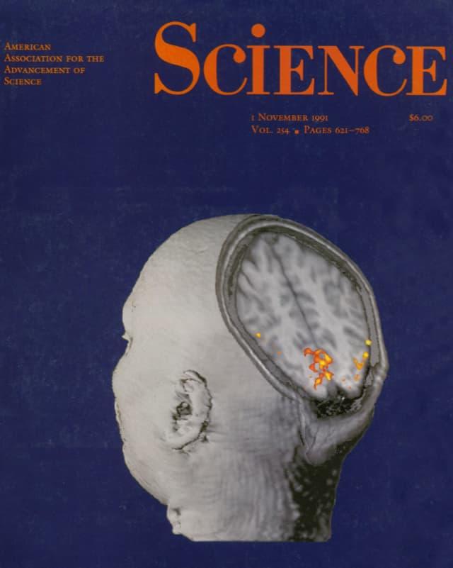 Titelblatt der Science-Ausgabe vom 1. November 1991 mit der eingefärbten MRI-Aufnahme eines menschlichen Gehirns