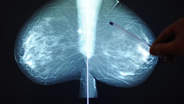 Jemand zeigt mit einem Kugelschreiber auf ein Röntgenbild mit zwei Brüsten.