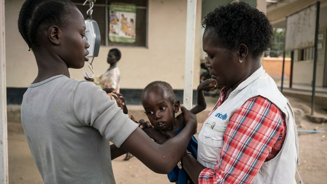 Unterernährtes Kind im Südsudan wird untersucht.