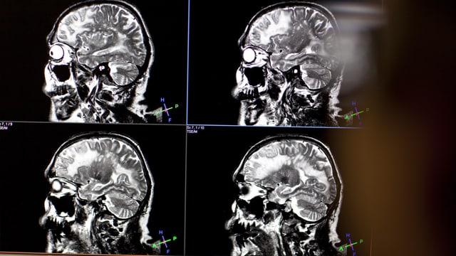 MRI eines Gehirns