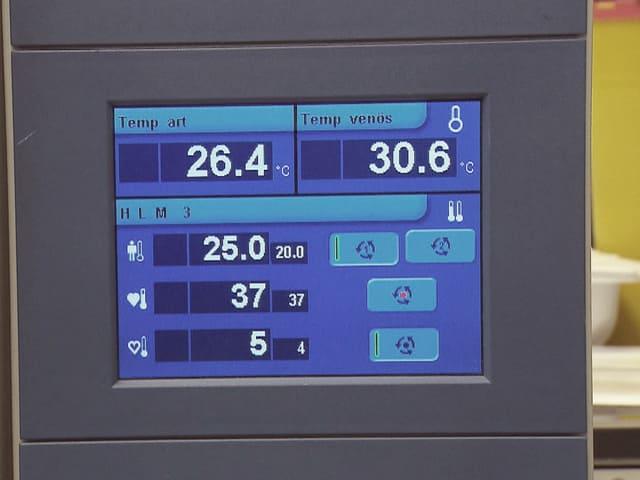 Anzeige-Bilderschirm mit der Körpertemperatur der Patientin.