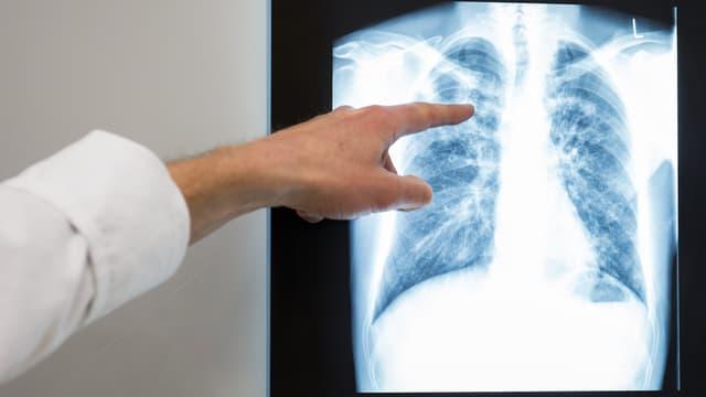 Radiografia d'in lom.