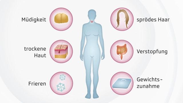 Grafik zu Mangel-Symptomen.