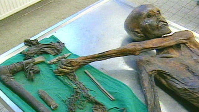 Ein mumifizierter Mensch aus der Steinzeit liegt auf einem Untersuchungstisch.