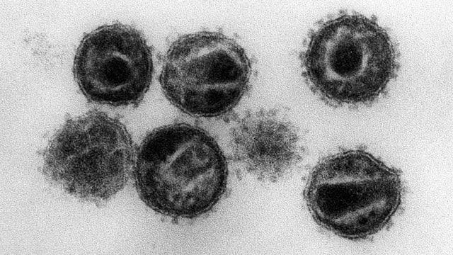 HI-Virus unter dem Mikroskop