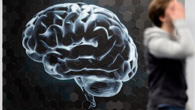 Ein geröngtes Hirn