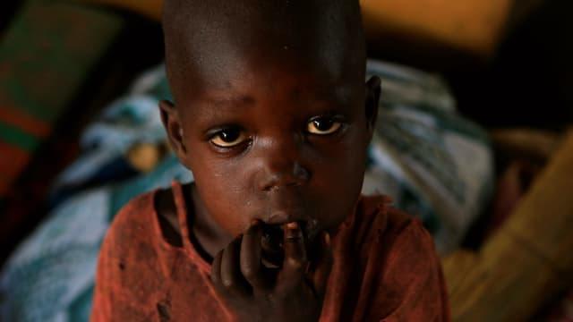 Hungerndes Kind im Südsudan.