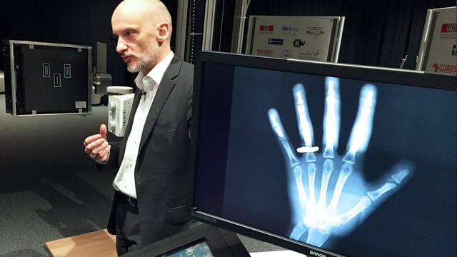 Bärtiger Mann neben einem Bildschirm mit der Röntgenaufnahme einer Hand.