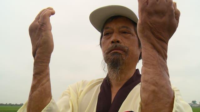 Napalmbombe: Son Doan wurde schwer verletzt, seine Narben zeugen davon.