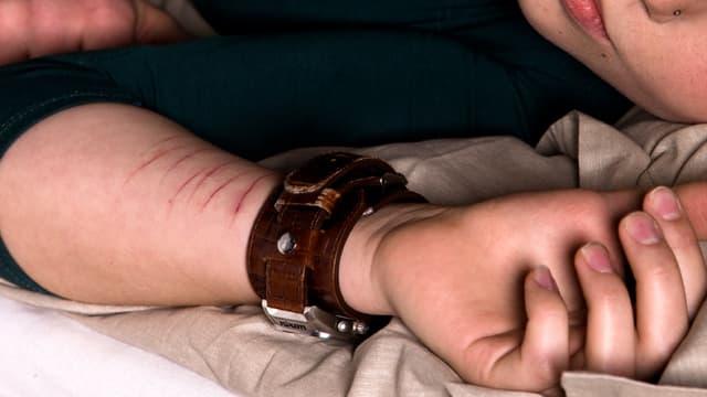 «Wenn jemand die Schnitte an meinem Arm sieht, schäme ich mich.»