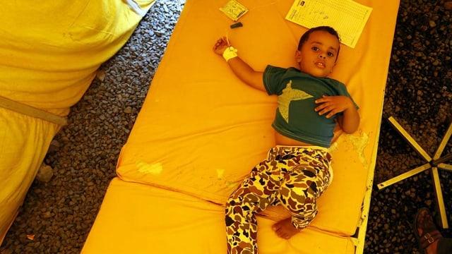 Ein Kind, das an Cholera erkrankt ist.