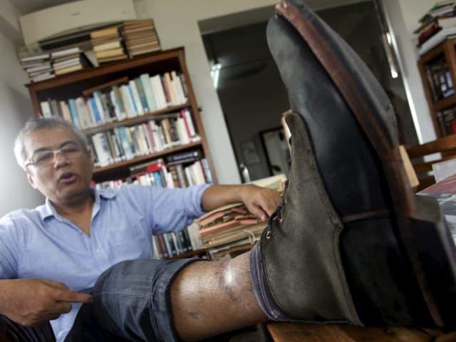 Chhang zeigt Folterverletzungen an seinem Bein