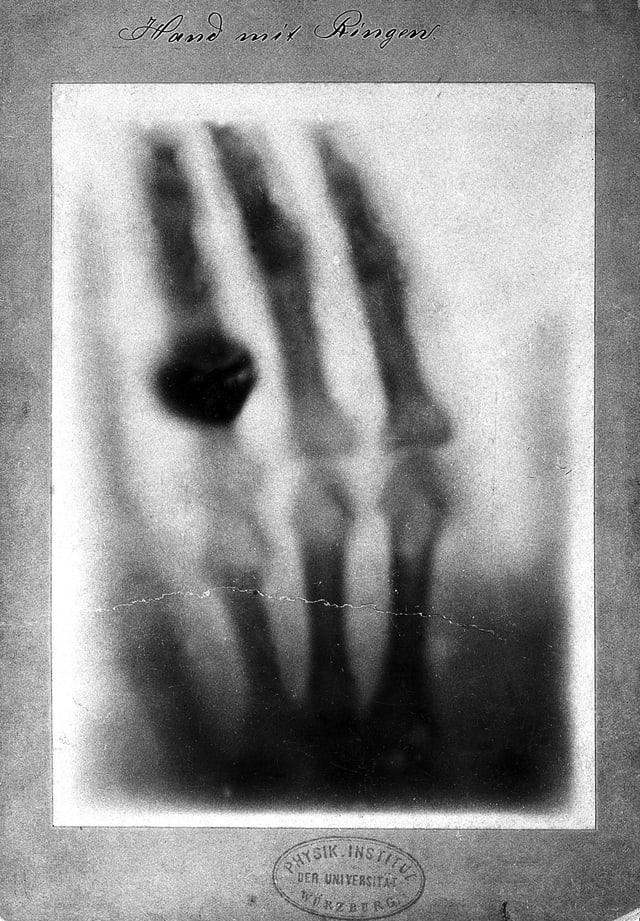 Röntgenaufnahme eienr Hand mit Ring.