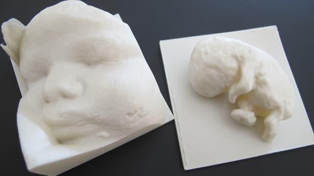 Gesicht und Embryo