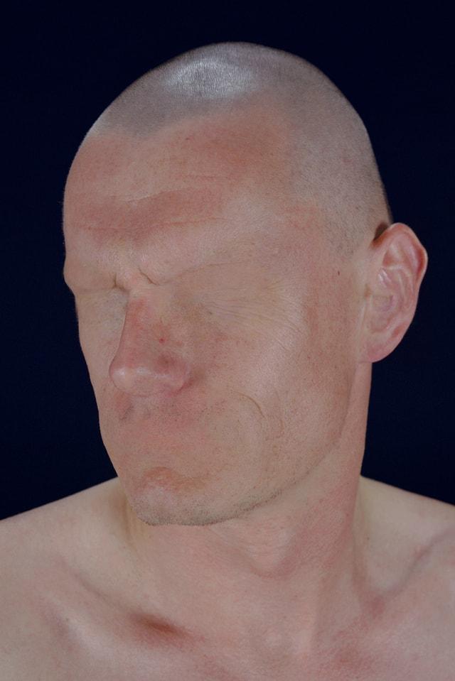 Ein Mann ohne Augen und Mund.