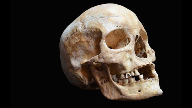Schädel einer jungen Frau aus dem 14.Jahrhundert.