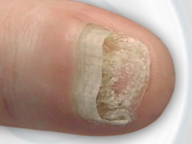 An Nagelpilz erkrankter Fingernagel.