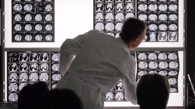 Ein Arzt vor einer Wand mit Röntgen-Bildern vom Gehirn.