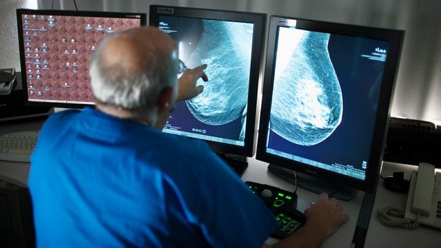Ein Arzt analysiert am Computer Röntgenbilder einer Brustuntersuchung.
