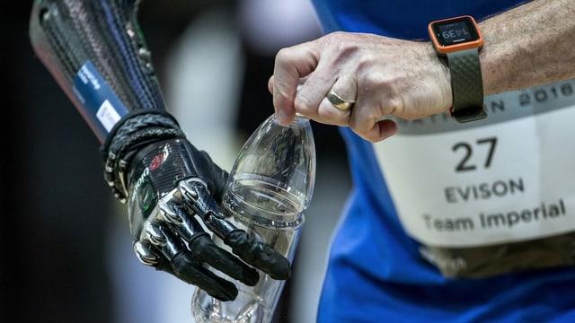 Ein Mann mit einer Handprothese