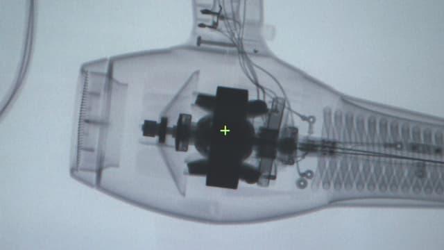 Auf dem Röntgenbild werden technische Details des Ionen-Föns sichtbar.