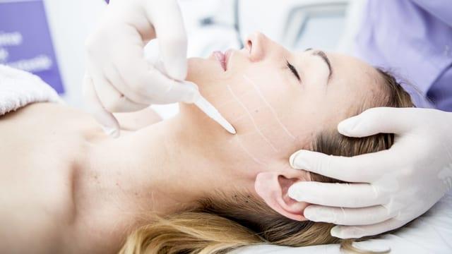 Einer Patientin wird im Gesicht angezeichnet, wo die Behandlung nötig ist.