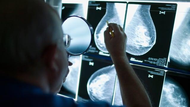 In medi examinescha ina mammografia.