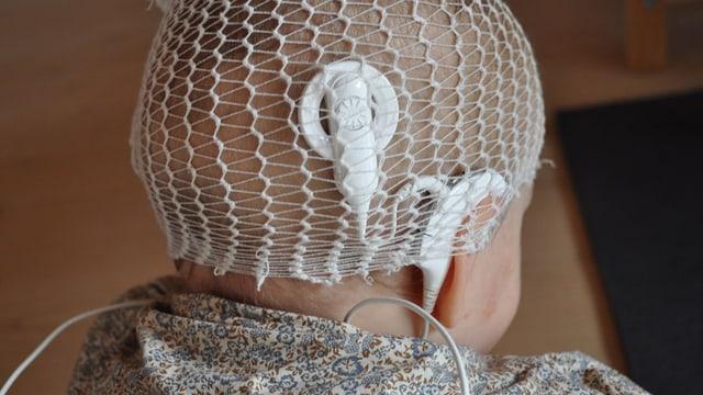 Klinkind mit frisch implantiertem Cochlea-Implantat