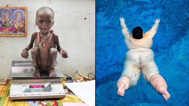 Ein unterernährtes Kind auf einer Waage. Rechts ein fettleibiges Kind in einem Swimmingpool.