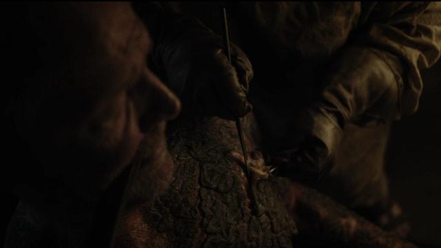Die wohl ekligste Szene der zweiten Folge von Staffel 7.