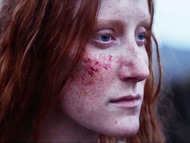 Ein Porträt einer Frau mit roten Haaren. Sie hat einen Kratzer im Gesicht.