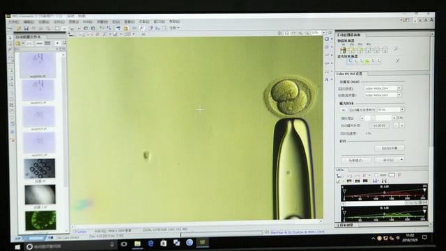 Ein Embryo unter dem Mikroskop.